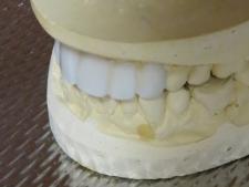 dentures-225